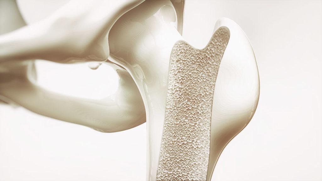 Collagène et Ostéoporose